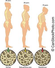 3, osteoporose