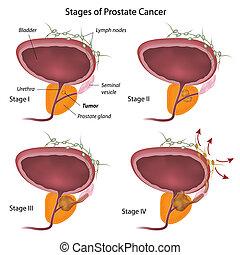 eps10, stadia, prostaatkanker