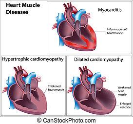 hart, muscle, ziekten, eps8