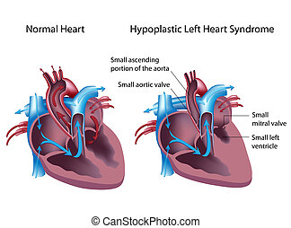 links, hypoplastic, hart, syndroom