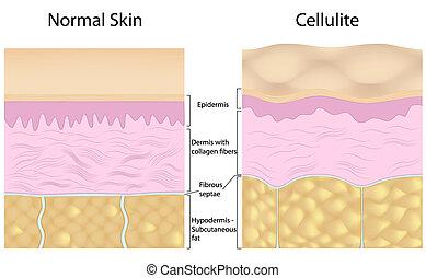 tegen, cellulite, vlotte huid