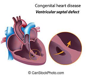 ventricular, eps8, septal, mankement