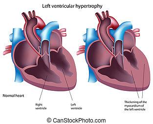 ventricular, hypertrophy, eps8, links